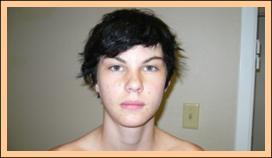 Face/Ears After Treatment,  Dyslexia Treatments, ADHD Treatments, Dyslexia Symptoms, Chiropractor, Austin