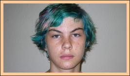 Face/Ears Before Treatment,  Dyslexia Treatments, ADHD Treatments, Dyslexia Symptoms, Chiropractor, Austin