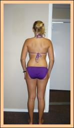 Shoulders After Treatment,  Dyslexia Treatments, ADHD Treatments, Dyslexia Symptoms, Chiropractor, Austin