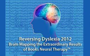 brainmapping,  Dyslexia Treatments, ADHD Treatments, Dyslexia Symptoms, Chiropractor, Austin